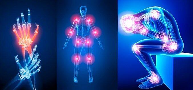 Eklem Sağlığının Önemi ve Gerekli Takviyeler