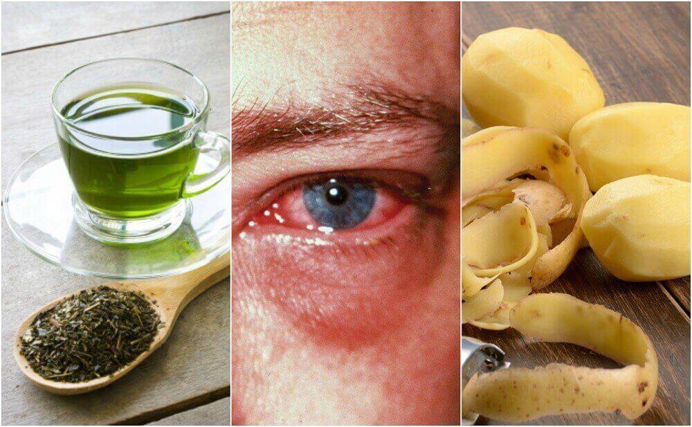 Pembe Göz Hastalığı İçin 8 Ev Tedavisi