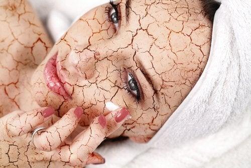 kuru cilde krem