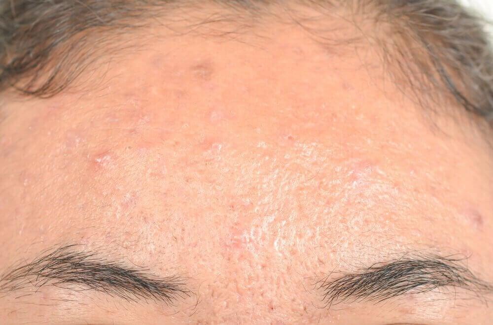 Seboreik Dermatit İçin Etkili Doğal Tedaviler