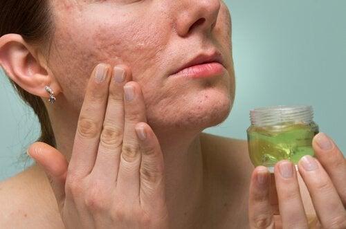 aloe vera cilde iyi gelir