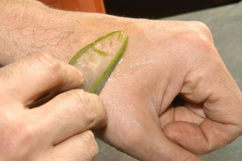 aloe vera yaraları iyileştirir