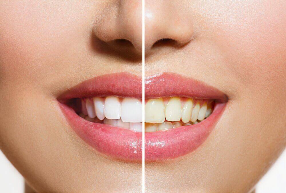 Dişlerinizi Beyazlatmaya Yardımcı Doğal Ürünler