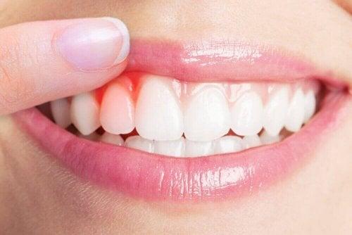 Diş Eti Enfeksiyonları İçin 5 Etkili Tedavi Yöntemi