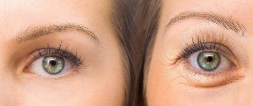 Düşük Göz Kapağı Tedavisi İçin 5 Doğal Yöntem
