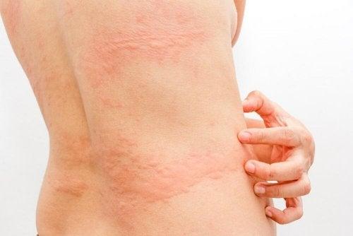 Kurdeşen Hastalığı İçin 3 Doğal Tedavi