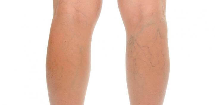 varisli bacaklar