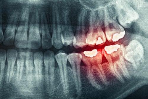 diş sıkma röntgen