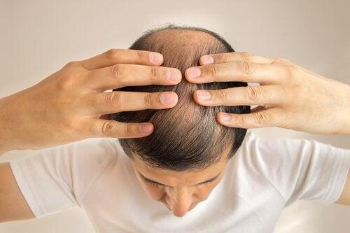 saçı dökülen elleri başında adam