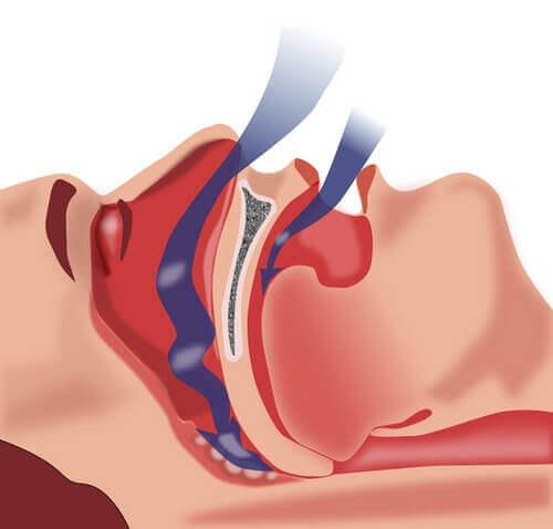 Tratamientos naturales para la apnea del sueño
