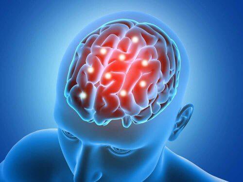 yukarıdan açık beyin grafik