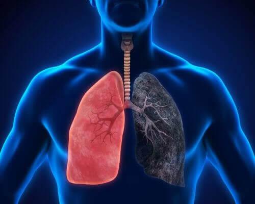 Zatürre Belirtileri: Hafife Alınmayacak Bir Hastalık