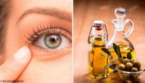Göz İltihabına Karşı 6 Doğal Reçete