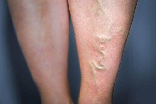 Damar İltihabı için Bu 5 Doğal Tedaviyi Deneyin