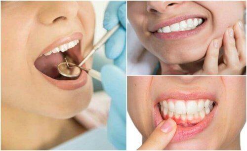 Bir Diş Enfeksiyonuna İşaret Eden 7 Semptom