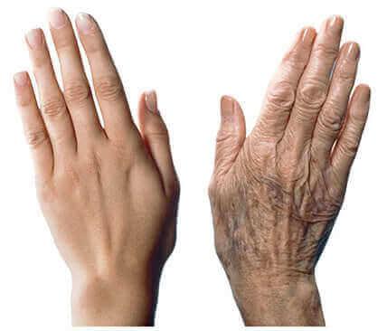Ellerinizin Yaşlanmasını Önlemek için 7 Bakım Önerisi