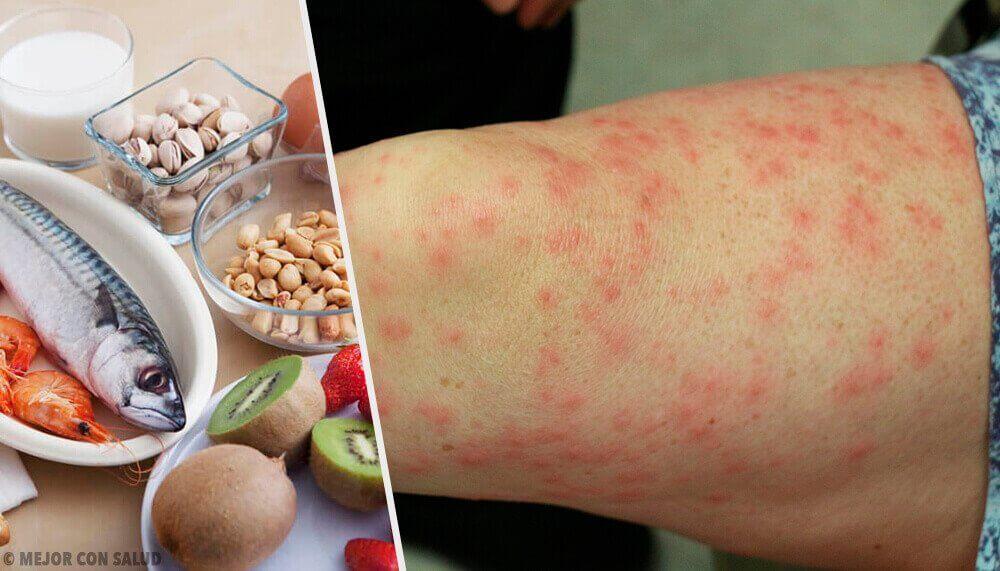 En Yaygın Gıda Alerjileri Nelerdir ve Bu Gıdaların Yeri Nasıl Doldurulur?