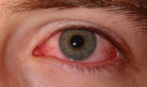 kanlanmış göz