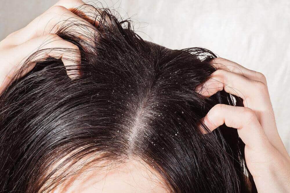 Saç Mantarı İçin En Etkili 6 Çözüm