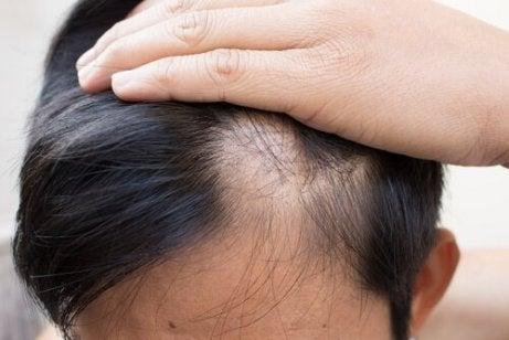 saçı dökülen adam