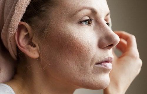 yüzünde akne izleri olan kadın