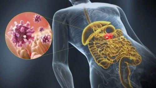 Gastroenterit: Bilmeniz Gereken Muhtemel Nedenleri
