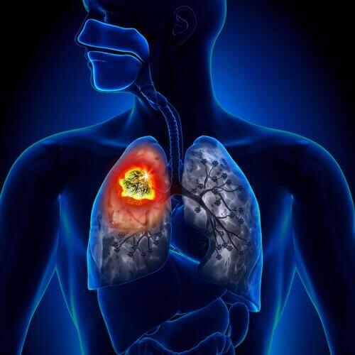 akciğer hastalık grafik görsel