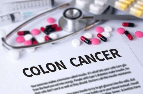 kolon kanserinin tedavisi