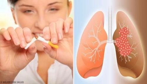 Akciğer Kanserinin Nedenleri Ve Teşhisi