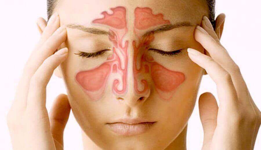 Paranazal Sinüsler Hakkında Bilmeniz Gereken 5 Şey