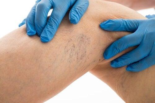 Varisli Damarları Tedavi Etmek İçin 8 Kural