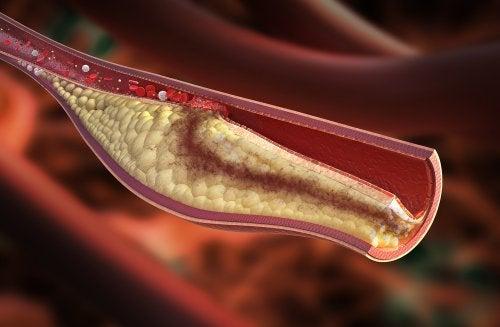 damar sertleşmesi