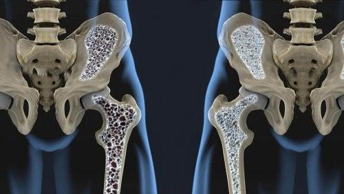 Kemik Erimesi için 6 Diyet Önerisi