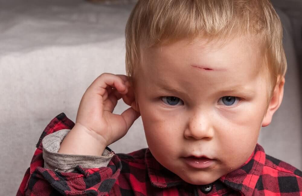 kafasını yaralayan bebek