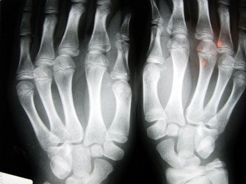 röntgen eller osteoropoz