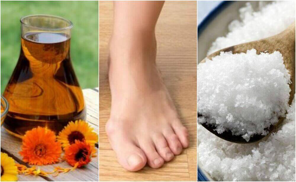 Ayak Parmağı Şişliği için 4 Doğal Çözüm