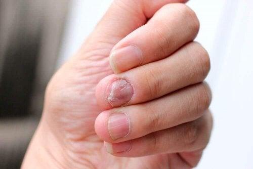 Psöriyatik Tırnaklara Karşı 5 Doğal Yöntem