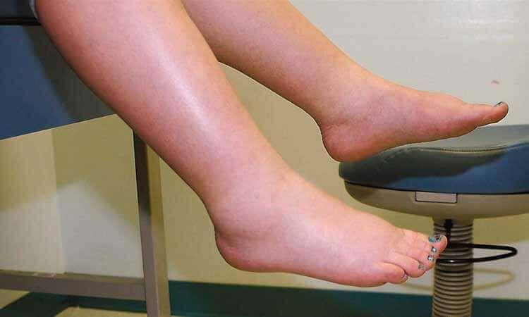 ayak bileklerinde şişkinlik