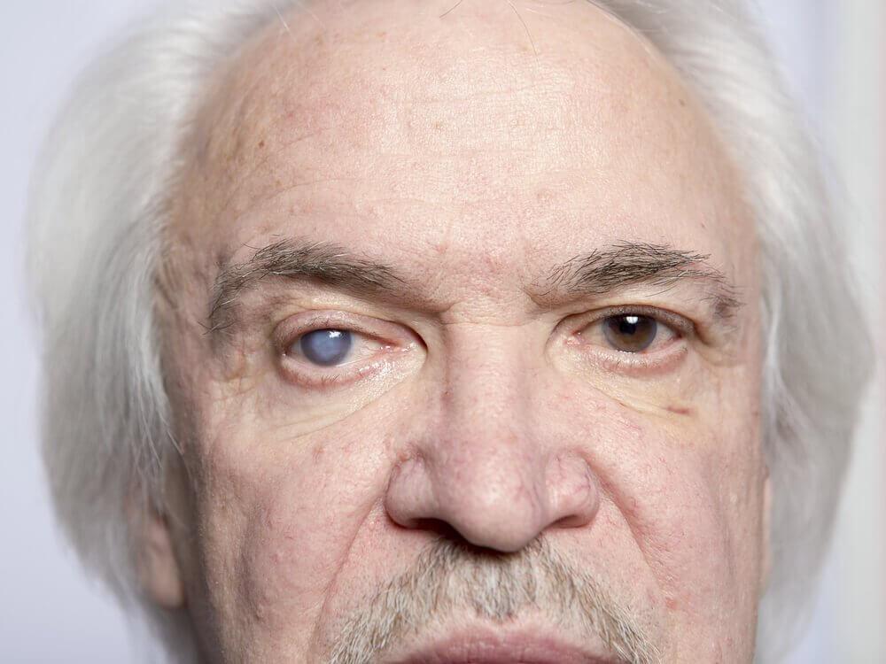 tek gözü katarakt olmuş adam