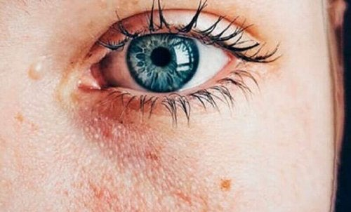 mavi göz göz altı hasar cilt