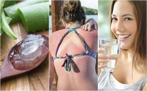 Güneş Yanıklarını Tedavi Etmenin 9 Yolu