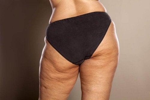 selülit bacak genel