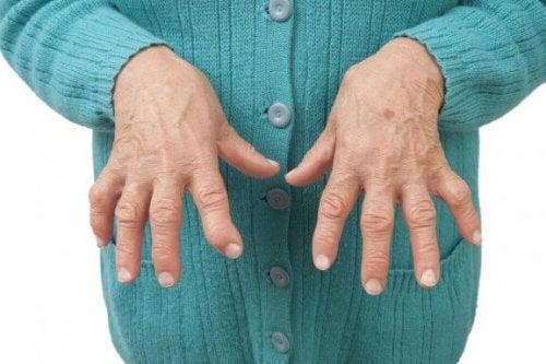 Romatoid Artriti Bu Tıbbi Reçetelerle Rahatlatın