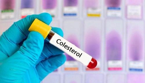 Bu Altı Bitkisel Reçeteyle Yüksek Kolesterolü Azaltın