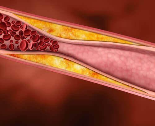 kolesterolden tıkalı damar