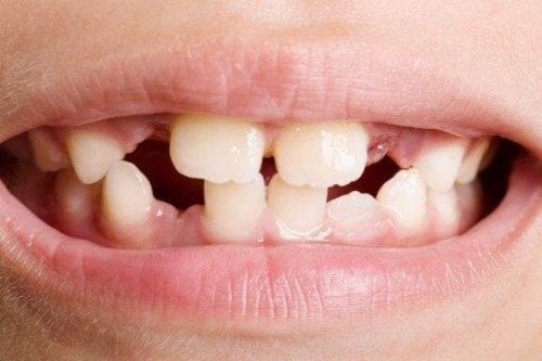 Diş Agenezisi: Türleri ve Tedavileri