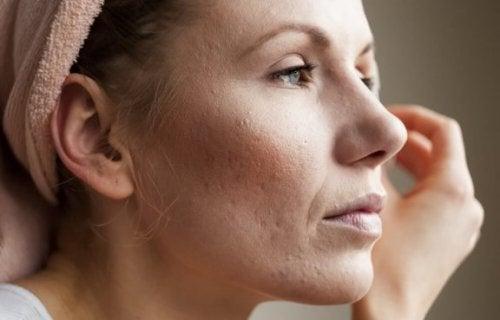 Gözenekleri Küçültmek İçin 8 İpucu