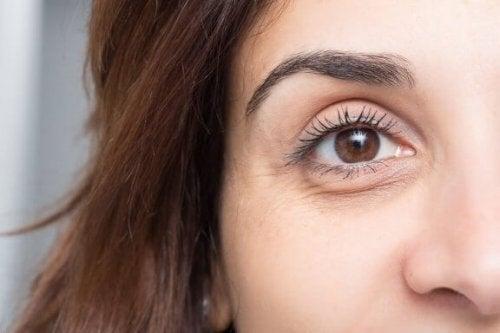Gözlerde Şişkinliği ve Koyu Halkaları Önlemek için Güvenilir İpuçları