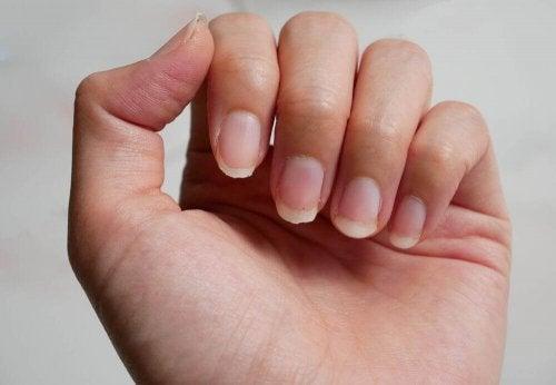 Kırılgan Tırnaklar İçin 9 Farklı Çözüm