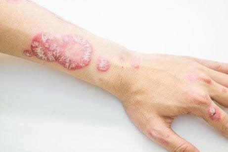 sedef hastası ve kolunda çıkan lekeler